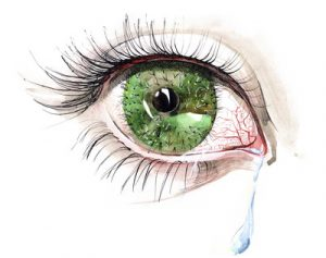 dry eye care in Palm Beach Gardens, FL